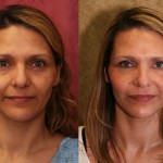 Eyelid (Blepharoplasty) Before & After Patient #6486