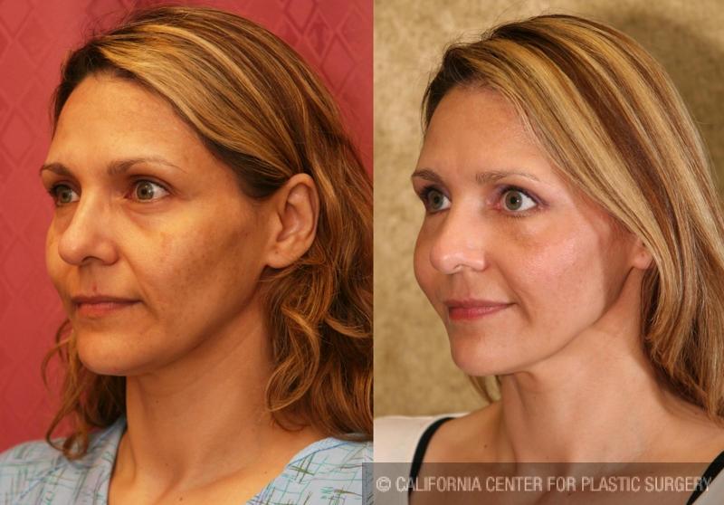 Eyelid (Blepharoplasty) Before & After Patient #6486