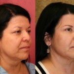 Eyelid (Blepharoplasty) Before & After Patient #6583