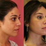Eyelid (Blepharoplasty) Before & After Patient #6570