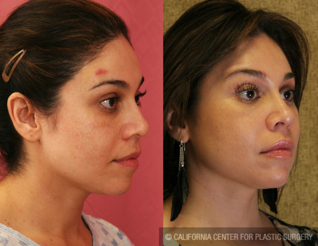 Facial Fat Grafting Before & After Patient #6734