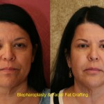 Facial Fat Grafting Before & After Patient #6767