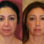 Eyelid (Blepharoplasty) Before & After Patient #6575