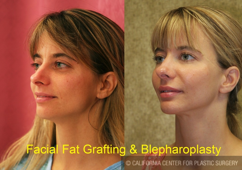 Facial Fat Grafting Before & After Patient #6600