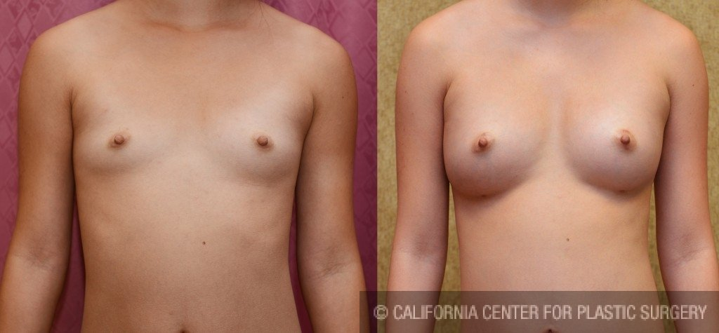 Breast Augmentation (Fat Transfer / Stem Cell) Before & After Patient #5281
