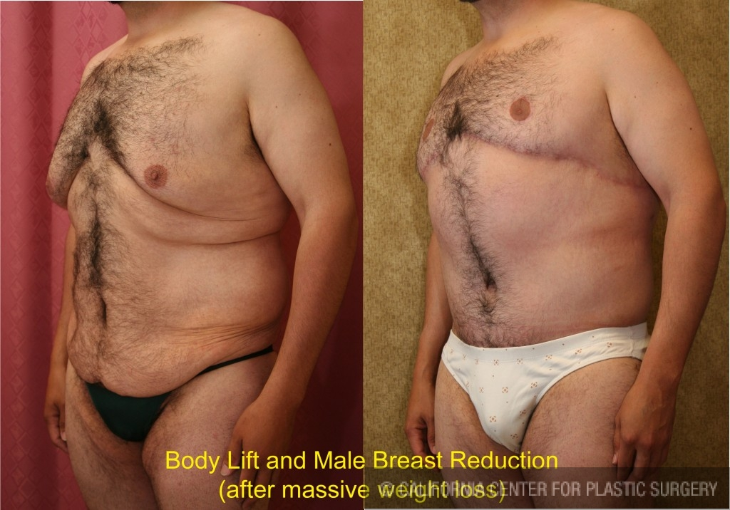 breast lifts before and after pictures  613461