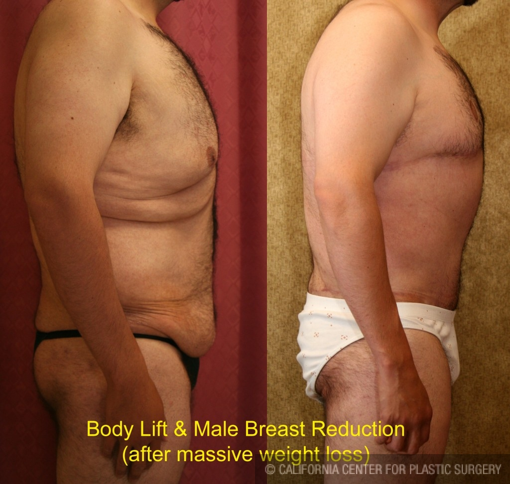 Male Tummy Tuck Before & After Patient #6023