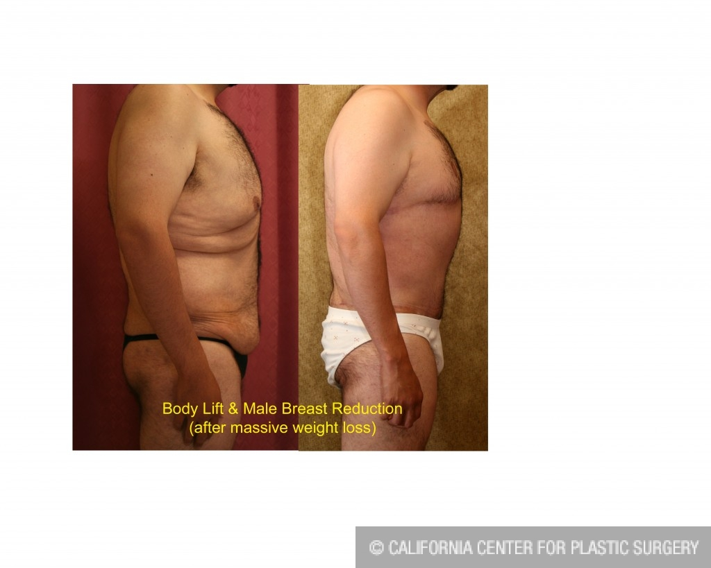 Male Breast Reduction Before & After Patient #6839