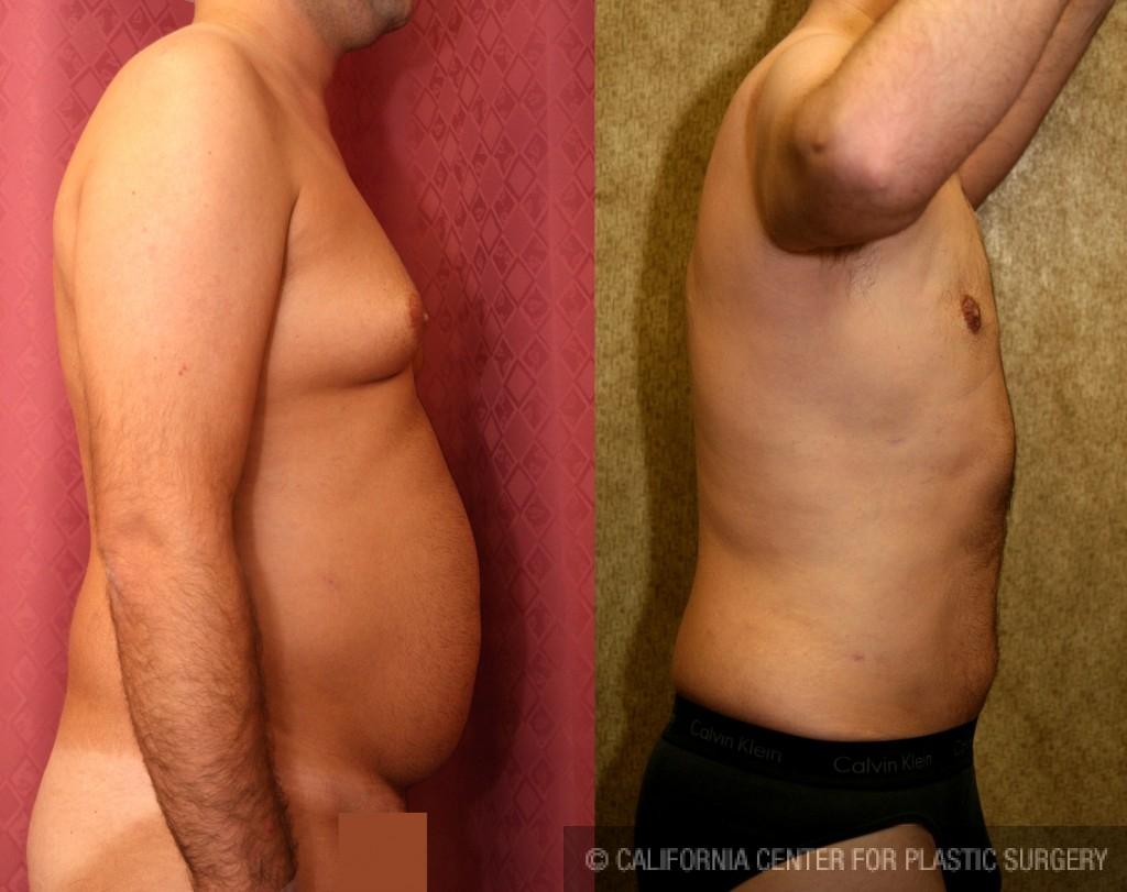 Male Liposuction Abdomen Before & After Patient #5642