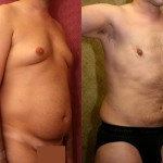 Male Liposuction Abdomen Before & After Patient #5642