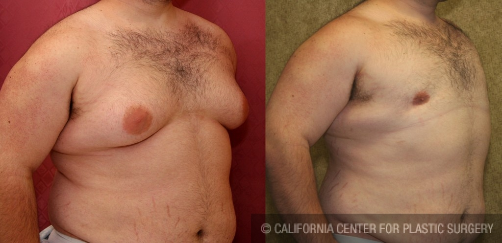 Male Breast Reduction Before & After Patient #6814