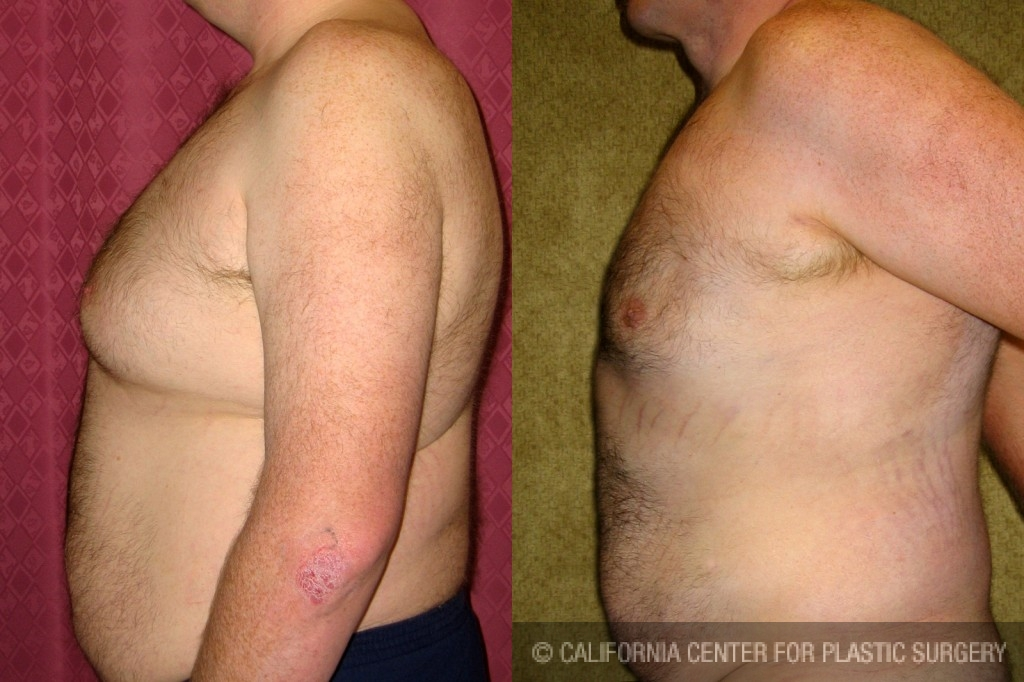 Male Breast Reduction Before & After Patient #6827