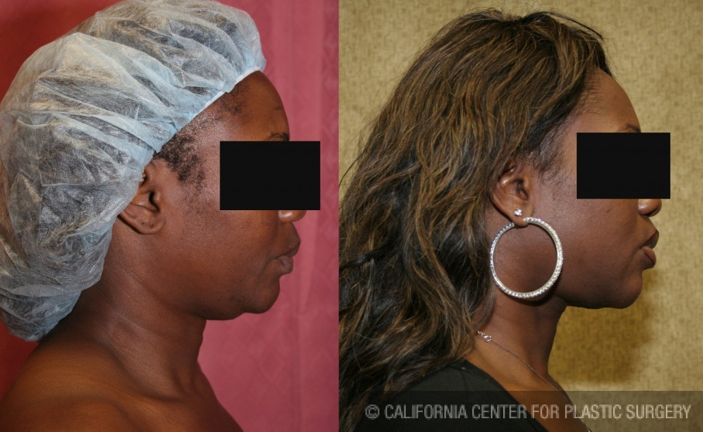 Neck & Face Liposuction Before & After Patient #6667