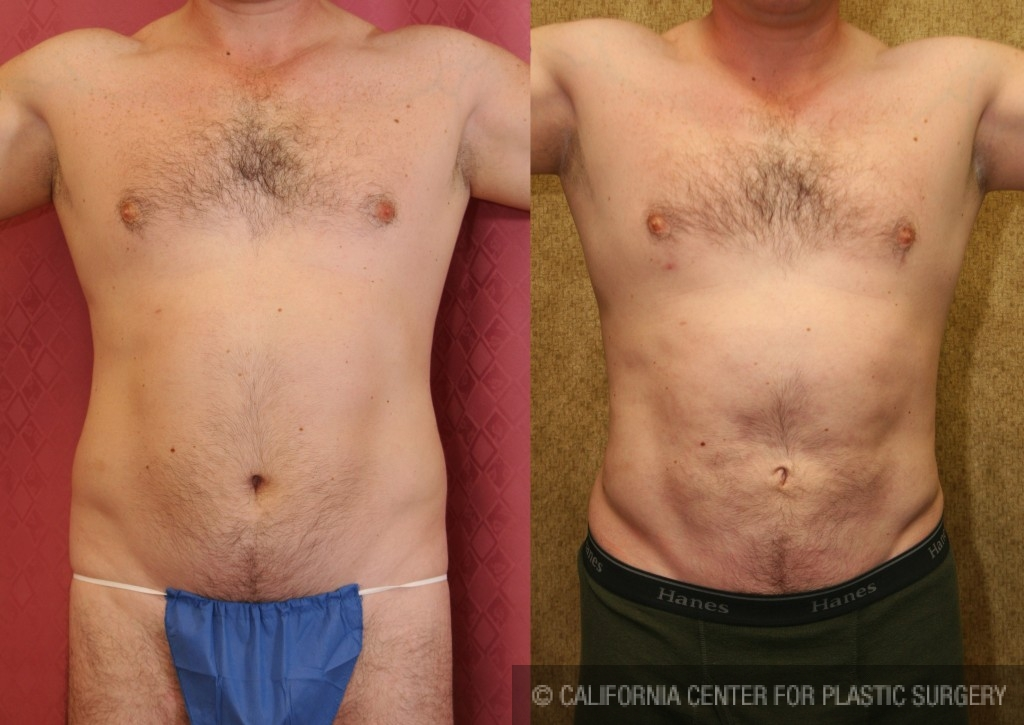 Male Liposuction Abdomen Before & After Patient #5665