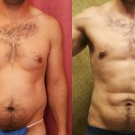 Male Liposuction Abdomen Before & After Patient #5680