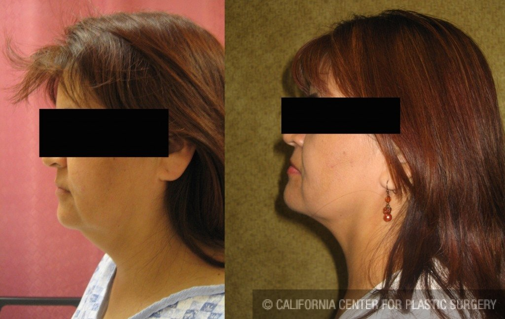Neck & Face Liposuction Before & After Patient #6640