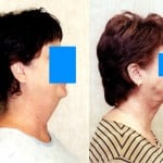 Neck & Face Liposuction Before & After Patient #6647