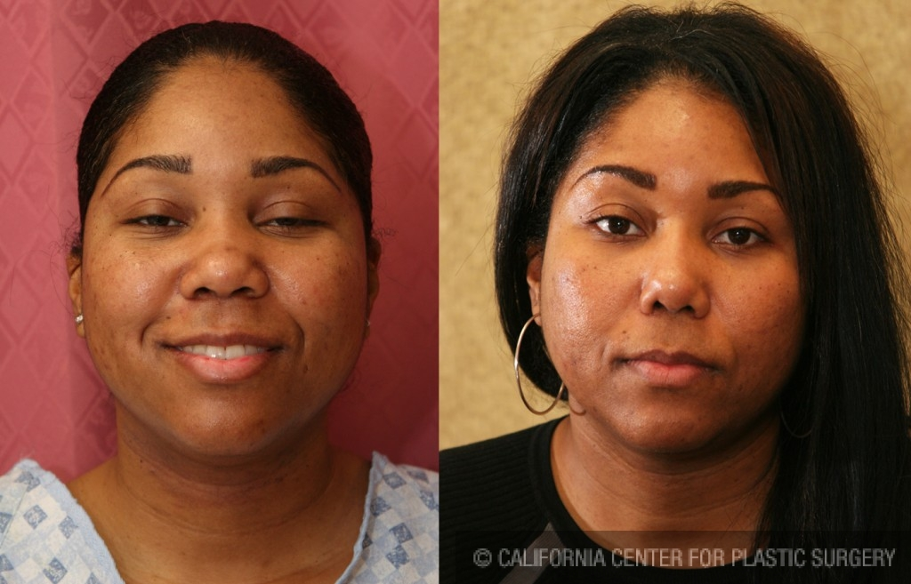 African American Rhinoplasty Before & After Patient #6300