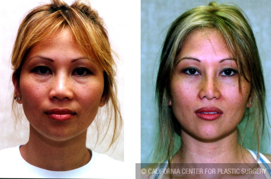 Asian Rhinoplasty Before & After Patient #6379