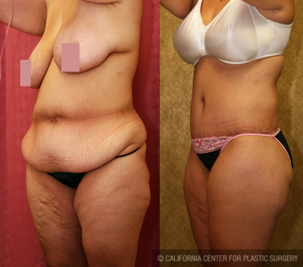 Body Lift Before & After Patient #6036