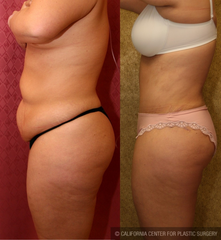 Tummy Tuck Medium Size Before & After Patient #5755