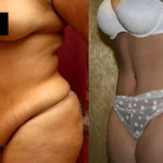 Tummy Tuck Medium Size Before & After Patient #5817
