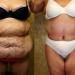 Tummy Tuck Plus Size Before & After Patient #5898