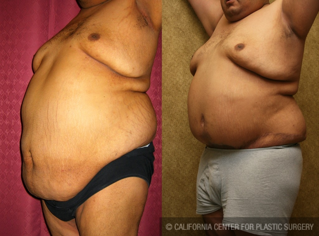 Male Tummy Tuck Before & After Patient #6027