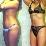 Tummy Tuck Small Size Before & After Patient #5750