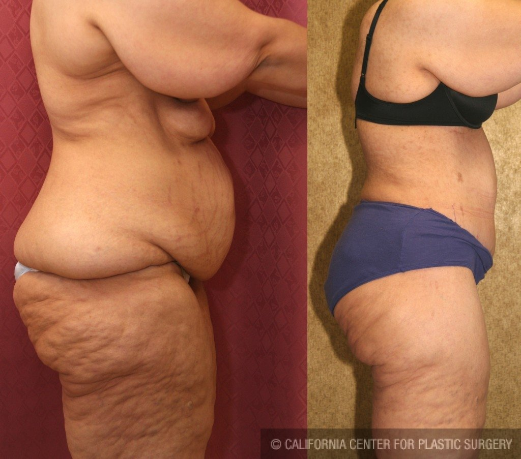 Tummy Tuck Plus Size Before & After Patient #5908