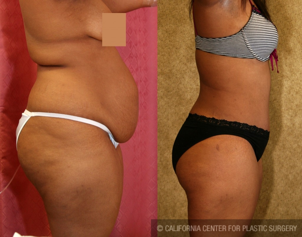 African American Tummy Tuck Before & After Patient #5957