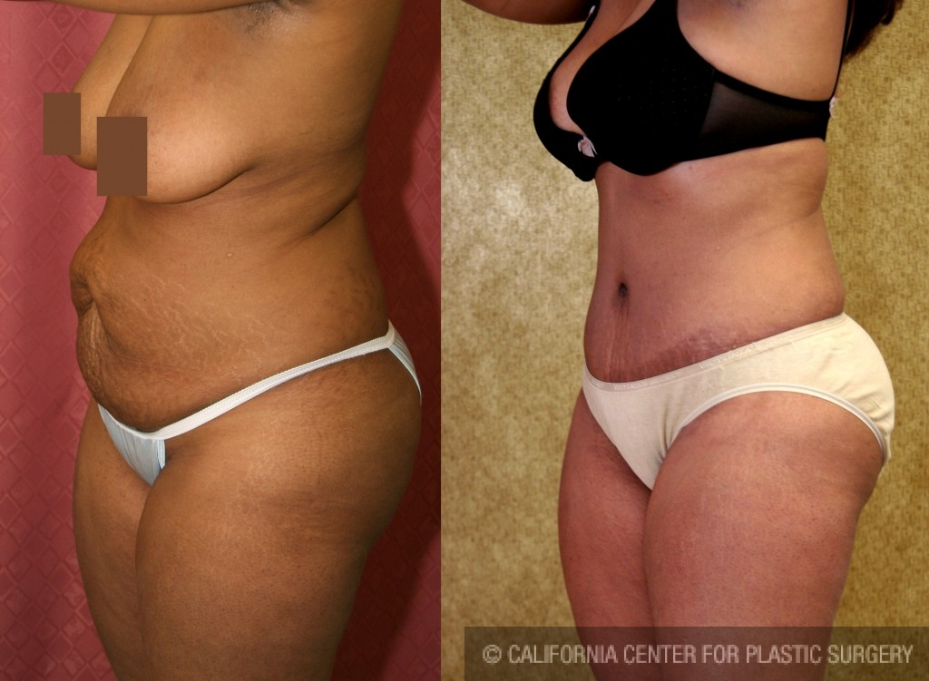 African American Tummy Tuck Before & After Patient #5963