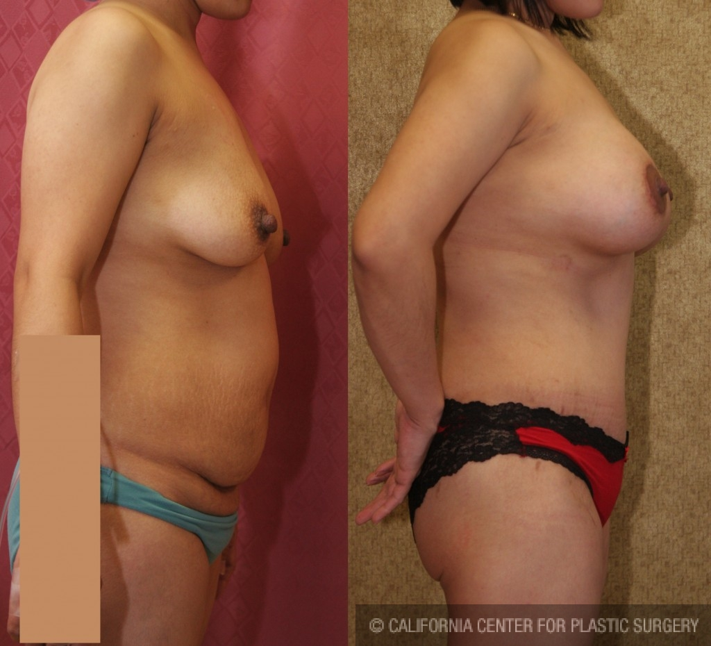 Tummy Tuck Medium Size Before & After Patient #5825