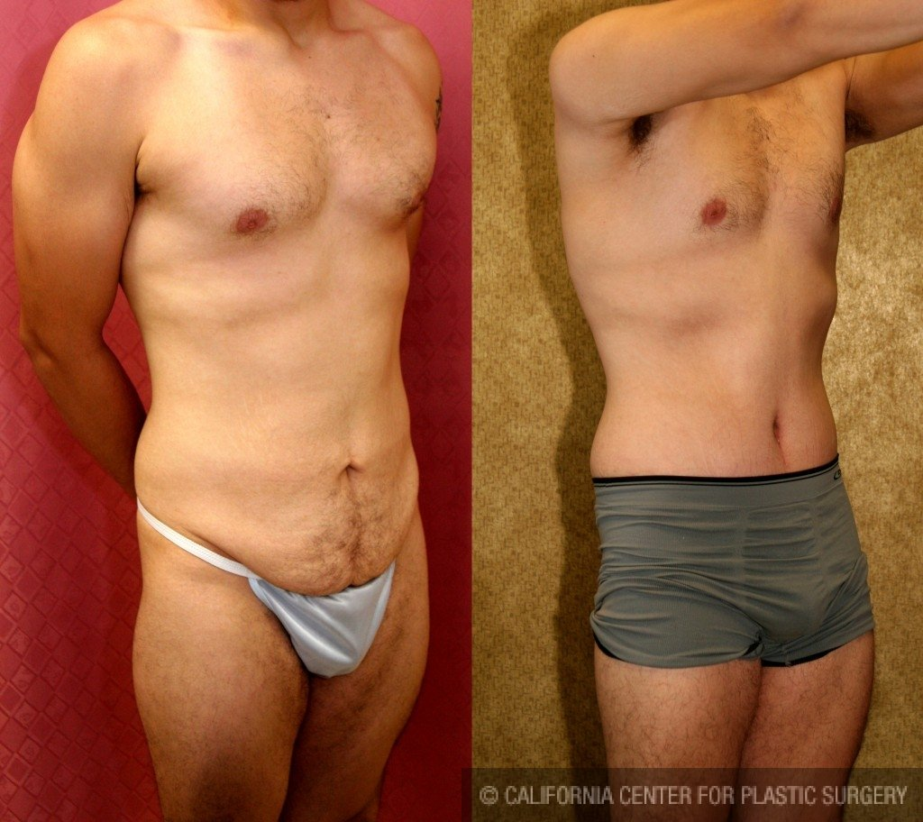 Male Tummy Tuck Before & After Patient #6009