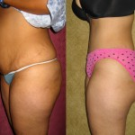 Tummy Tuck Medium Size Before & After Patient #5813