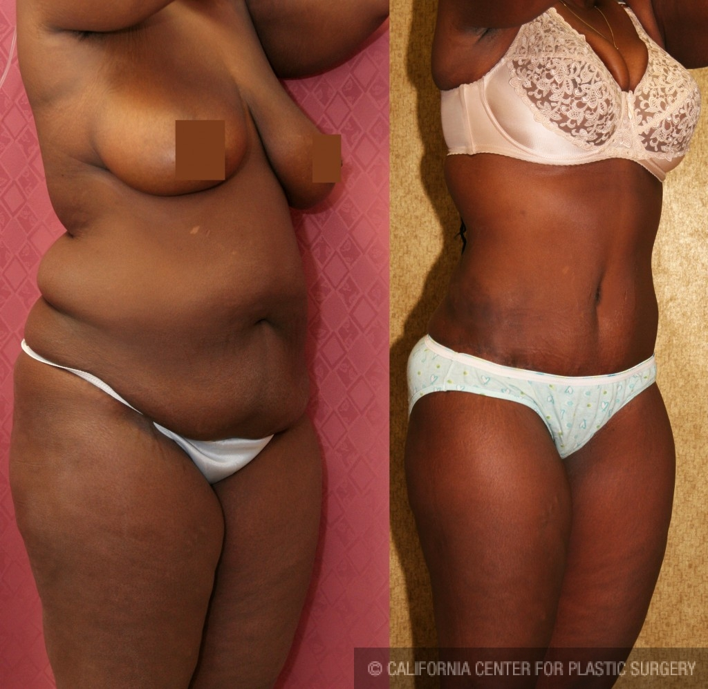 African American Tummy Tuck Before & After Patient #5969