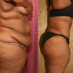 African American Tummy Tuck Before & After Patient #5940