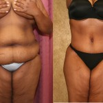 Tummy Tuck Plus Size Before & After Patient #5884