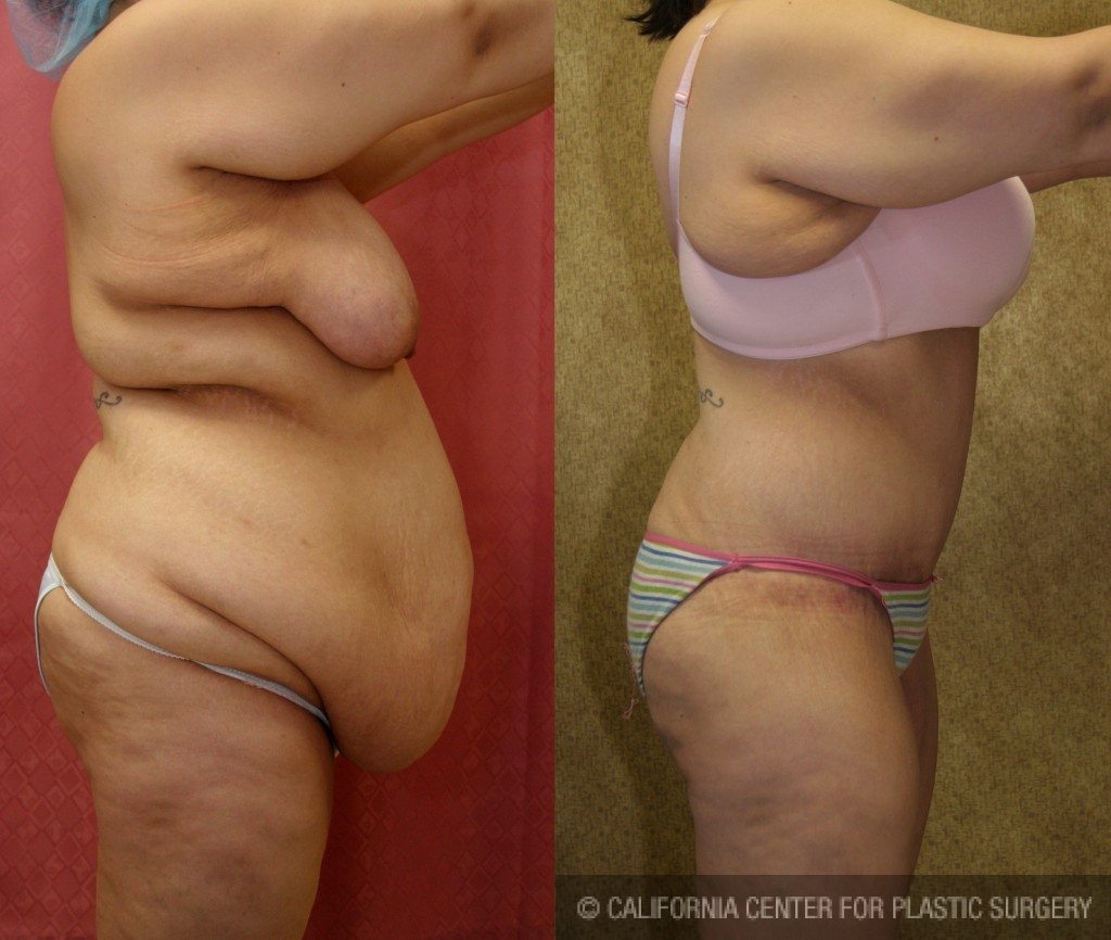 Tummy Tuck Plus Size Before & After Patient #5874