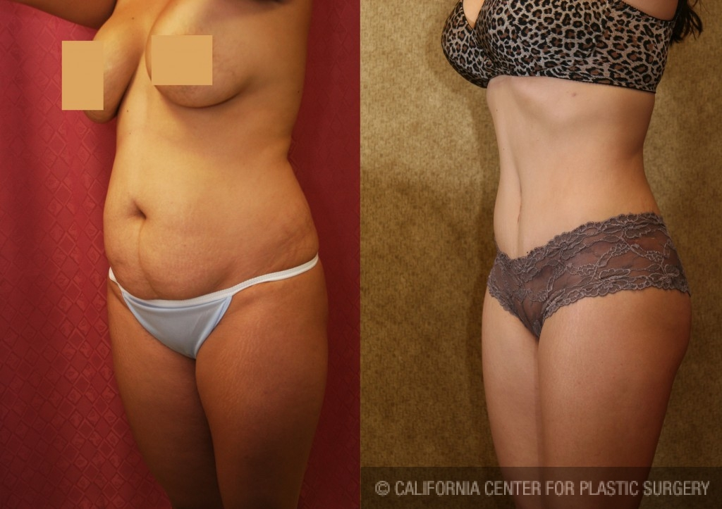 Tummy Tuck Small Size Before & After Patient #5726