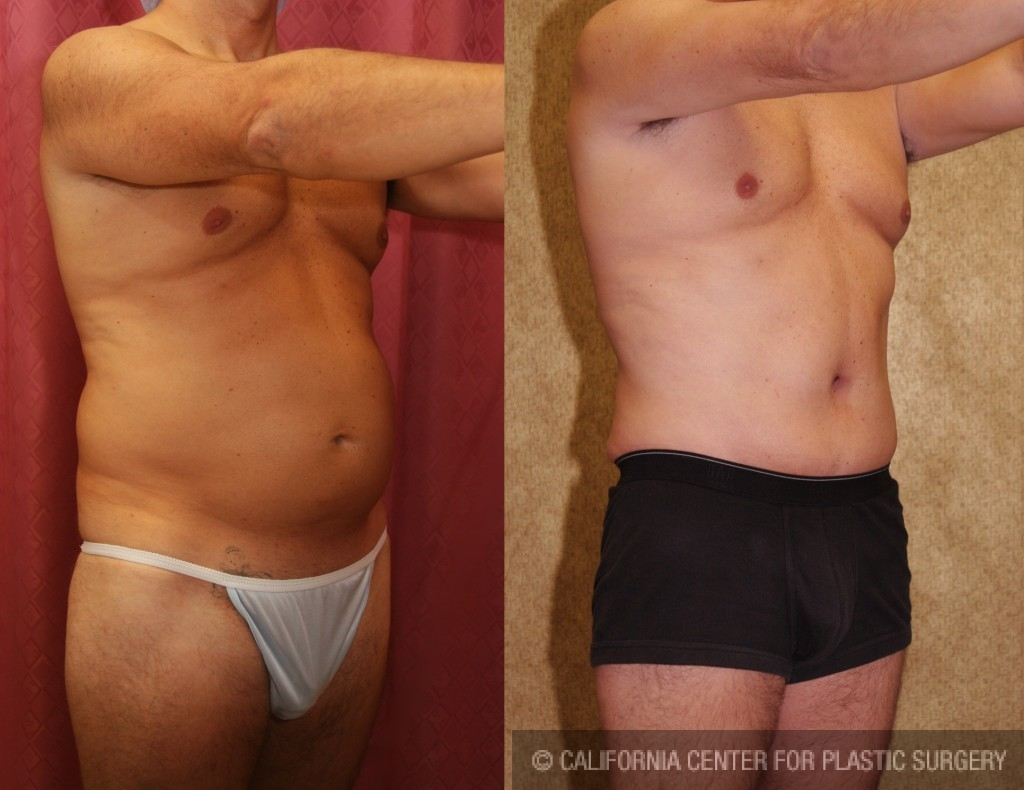 Male Tummy Tuck Before & After Patient #6014