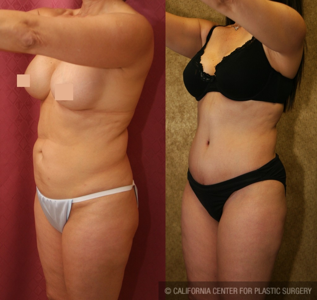 Tummy Tuck Medium Size Before & After Patient #5831