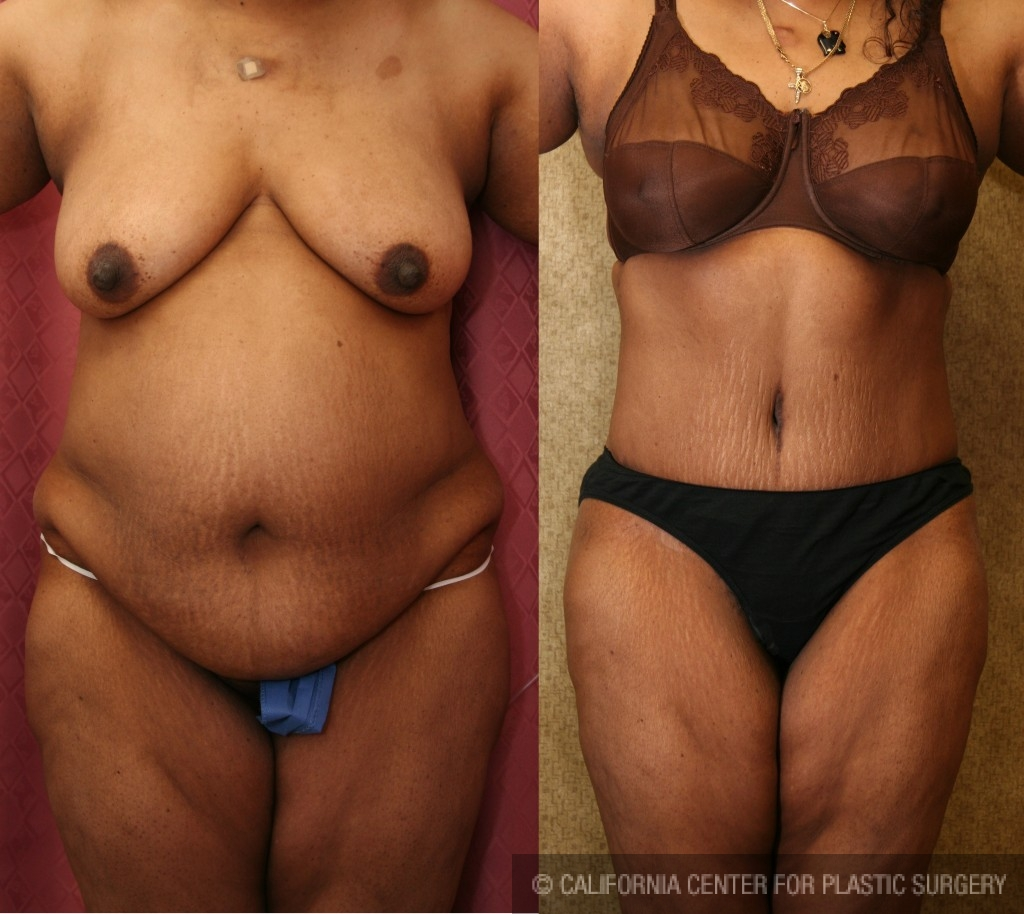African American Tummy Tuck Before & After Patient #5944