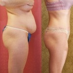 Tummy Tuck Medium Size Before & After Patient #5773