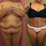 Tummy Tuck Plus Size Before & After Patient #5880