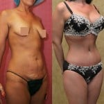 Tummy Tuck Small Size Before & After Patient #5732