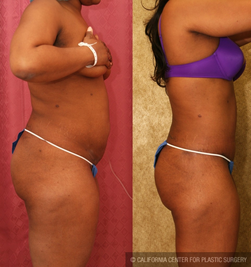 African American Tummy Tuck Before & After Patient #5933