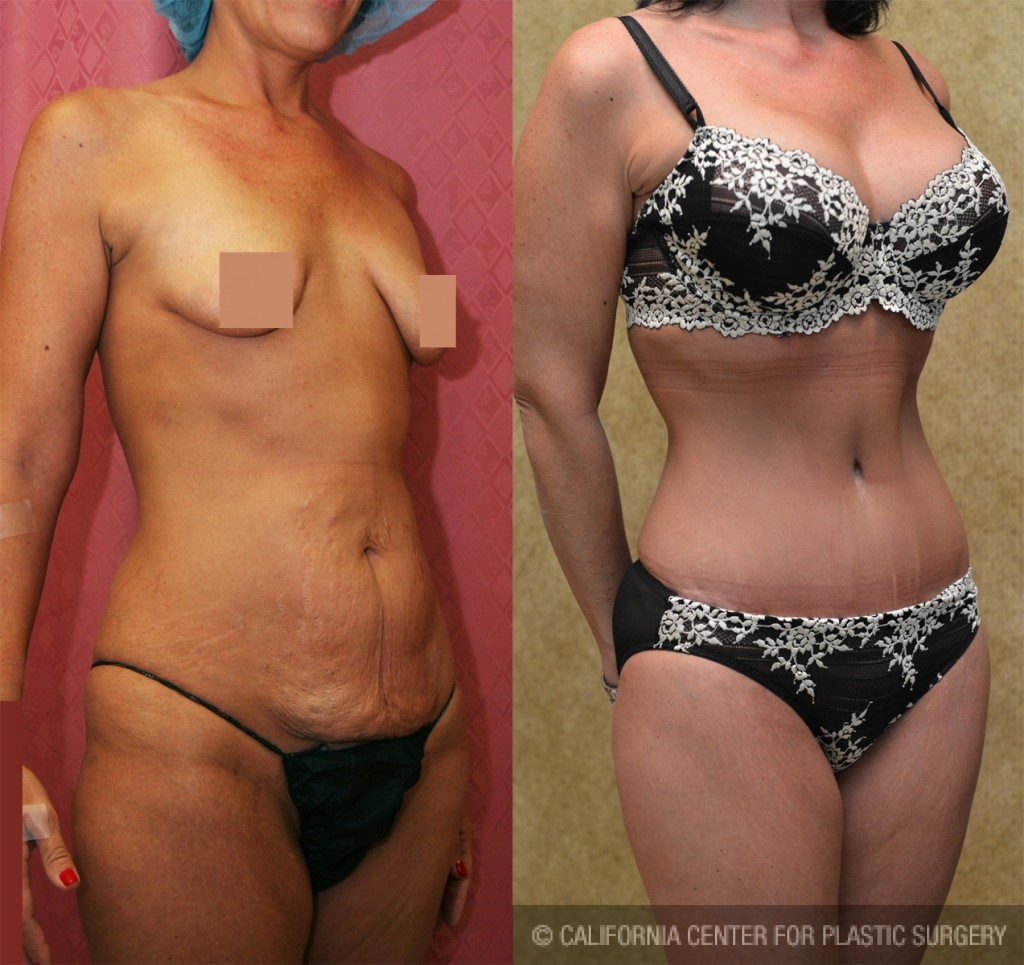 Mommy Makeover Before & After Patient #5979