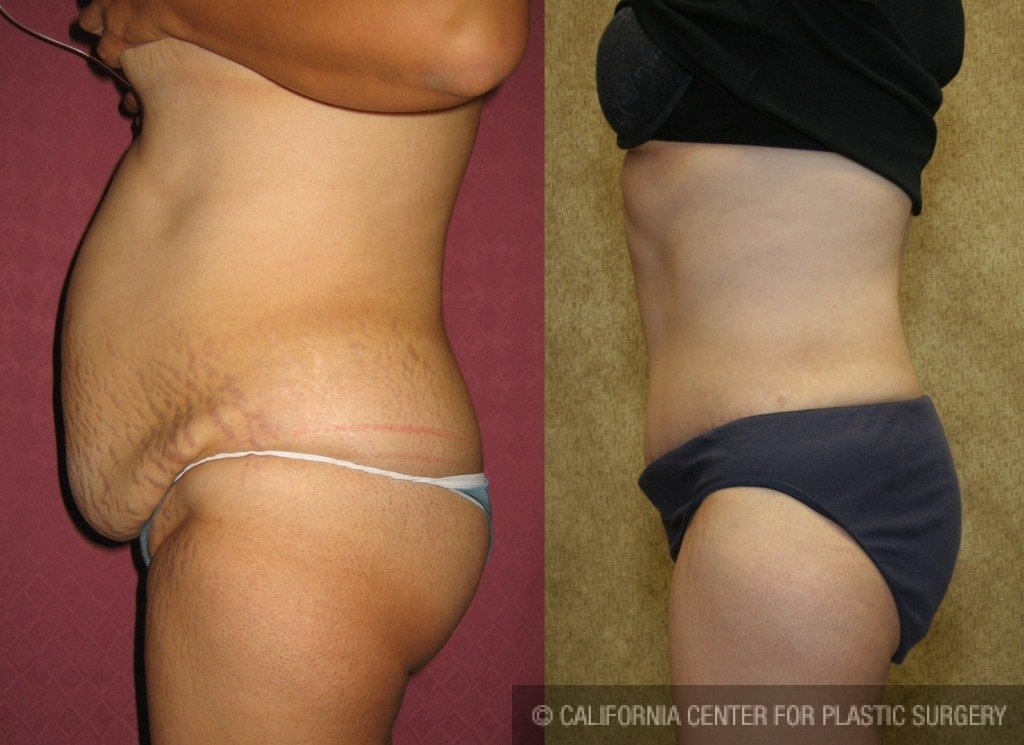 Tummy Tuck Medium Size Before & After Patient #5869