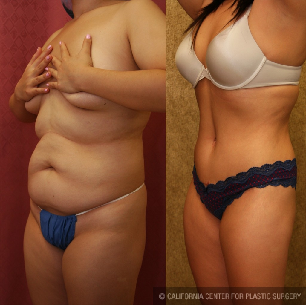 Tummy Tuck Medium Size Before & After Patient #5798